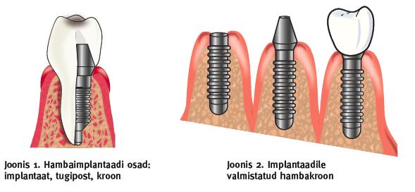 hambaimplantatsioon