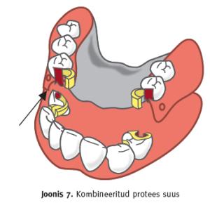 Kombineeritud protees suus